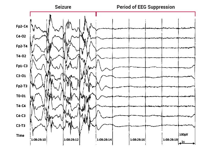 Post-ictal generalized EEG suppression